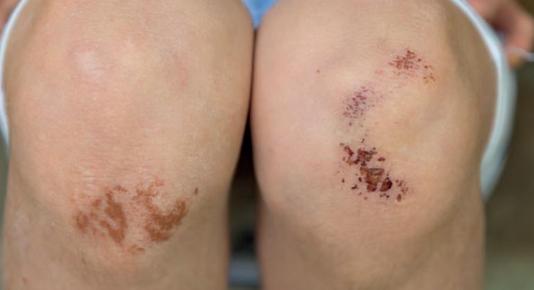Nabız ve kan basıncı arasındaki fark